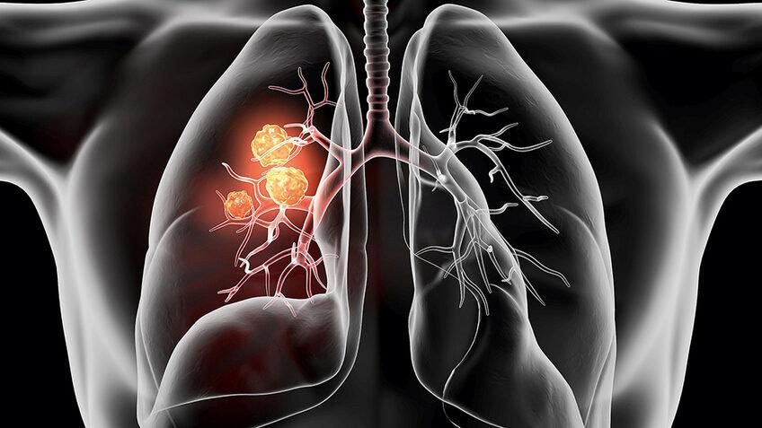 Новый метод быстрого определения мутаций при раке легких