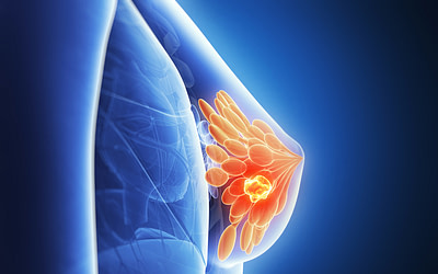 Smarter cancer care- индивилуальное лечение для пациенток с раком груди